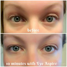 I may only be in my twenties, but I definitely suffer from under eye bags!  10 minutes with Eye Aspire from Limelight by Alcone and they are gone!  Not only does it rid of bags under the eyes, but it also lightens and tightens...all while being all natural! limelightbyalcone.com/juliadickinson