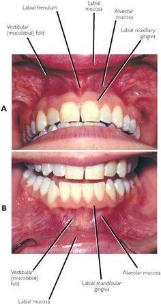 Gums Cause Heart Trouble - Dental News - Articles Dental Assistant Study, Dental Hygiene Student, Dental Hygienist, Dental Procedures, Teeth Health, Dental Health, Oral Health, Dental Terminology, Dental Anatomy