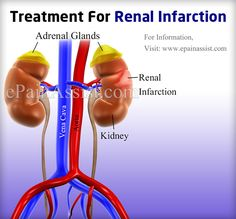 Renal Infarction means blood flow to the renal arteries getting obstructed all of a sudden due to some underlying medical condition. Lets read about the causes, symptoms, and treatment options available for treating Renal Infarction. Adrenal Glands, Abdominal Pain, Nurse Practitioner, Medical Conditions, Signs, Healthy, Shop Signs, Health, Upset Tummy