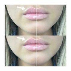 Nu Colour® Lip Plumping Balm - The Beauty Guide Diy Lip Plumper, Lip Plumping Balm, Natural Lip Plumper, Natural Lips, Lip Balm, Contouring Lip Gloss, Les Cheetah Girls, Botox Lips, At Home Spa
