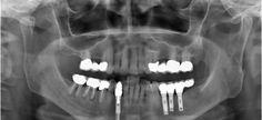 La Tomografía Axial Computarizada para implantes dentales o Dentascan.
