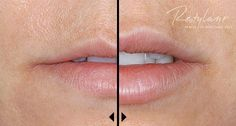 Restylane Dermal Filler - before and after. Carolina Laser & Cosmetic Center in Winston Salem, NC is your choice for Botox and Dermal Fillers! Call today to schedule your consultation! Facial Fillers, Botox Fillers, Dermal Fillers, Lip Fillers, Restylane Lips, Lip Augmentation, Cellulite Scrub, Lip Injections, Perfect Lips