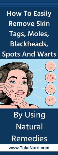 How To Easily Remove Skin Tags, Moles, Blackheads, Spots And Warts By Using Natural Remedies #IngrownHairRemedies Warts On Hands, Warts On Face, Natural Cures, Natural Health, Get Rid Of Warts, Remove Warts, What Causes Warts, How Do You Remove, Skin Tag Removal