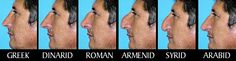 A Greek, Dinarid, Roman, Armenid, Syrid and Arabid nose. The Dinaric race (or Adriatic race or Epirotic race) is an archaic term historically used to describe the perceived predominant phenotype of the contemporary ethnic groups of South-Eastern Europe.