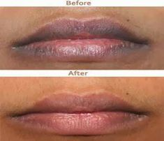 Pink Lips Please – How to Get Rid of Dark Lips Naturally | Beauty and MakeUp Tips