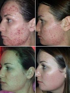 After trying everything - Kiera found Jeunesse's LUMINESCE skincare & her self confidence. Acne scars diminished with our serum and facial product line. #acne #skincare #howtogetridofacnescars