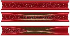 Kelancaran peradaran darah sangat penting bagi kesehatan. Apasih yang akan terjadi kalau peradaran darah kita tidak lancar? Mulai dari Kram, Pegal-pegal hingga Stroke Sumbatan. Hih Ngeri kan?? Nah,…