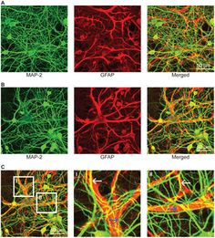 Images: 30 DIV Hippocampal Cultures. IF detection of MAP-2 (green) and GFAP (red) in 30 DIV (A–C) cultured E18 hippocampal cells using a 40X objective. Images (A and B) clearly depict the physical contact between glia processes & dendritic arbors. Under closer examination (CI and CII), it is clear the dendrites have grown both bellow (blue arrows) & above (white arrows) glial processes, forming a highly interconnected three-dimensional network by 30 DIV…