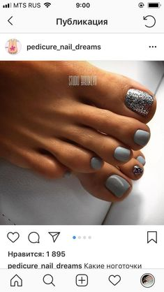 Nail Polish Ideas pedicure nail art toenails style for 2019 Is An Electric Cute Toe Nails, Hot Nails, Fancy Nails, Pretty Nails, Gel Toe Nails, Acrylic Nails, Glitter Toe Nails, Gel Toes, Pretty Toes