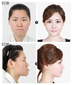 By #Faceline N-baby face #orthognathic #surgery, changed to real #babyface.
