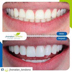 #Repost @jhonatan_londono with @repostapp.  Un viernes lleno de sonrisas Feliz fin de semana #belleza #odontologia #composite #smiledesign #smile #perfectsmile #lumineers #dientesperfectos #fit #fitness #crossfit #lifestyle #veneers #veneer #dentalveneer #dentalveneers #dentist #dentistry #esteticadental #cosmeticdentistry #cosmetic #miami #miamibeach #newyork #ny #nyc #cosmeticdentist by jhonatanlond Our Cosmetic Dentistry Page: http://www.lagunavistadental.com/services/cosmetic-dentistry…