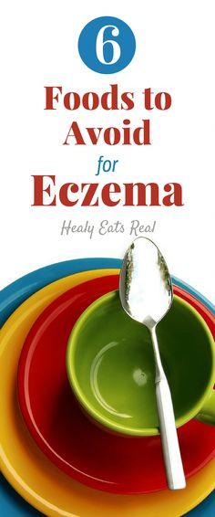 Aquaponics Fish Tank Kit #AquaponicsForHomeUse  #NummularEczema Nummular Eczema, Eczema Causes, Eczema Symptoms, Eczema Remedies, Herbal Remedies, Health Remedies, Eczema Relief, Itch Relief, Natural Remedies