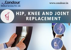 You can extend the #Warranty of your Frame #Muscle #Bones and #Joints with #Replacement ------------------------------ Visit: http://condour.in/