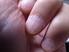10 Nail Symptoms and What They Mean for Your Health Herbal Remedies, Home Remedies, Natural Remedies, Natural Treatments, Nail Symptoms, Fingernail Health, Kefir How To Make, Full Body Cleanse, Healthy Nails