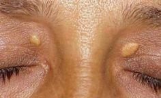Fibrómy a bradavice sa vám už nikdy neobjavia! Krátka cesta k zdravej koži   Báječné Ženy