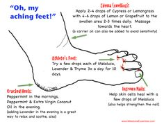 Oh, my aching feet! Cracked heels? Edema? Athlete's foot? Ingrown toenail? doTerra has oils to help with these ailments.