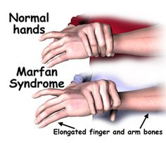 Marfan Syndrome– Causes, Symptoms, Diagnosis, Treatment and Ongoing care