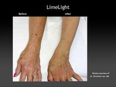 Age spots on your arms and hands making you look old?  Limelight can be an answer! #sholarcenter