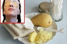 Kai, Home Remedies, Beauty Hacks, Beauty Tips, Potatoes, Healthy Recipes, Fruit, Simple, Ethnic Recipes