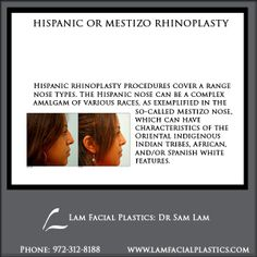 The Hispanic nose can be a complex amalgam of various races, as exemplified in the so-called Mestizo nose. Hispanic rhinoplasty procedures are performed @LamFacialPlastics by Dr Lam personally, at his Cosmetic Surgery center in Dallas, Texas. #LamFacialPlastics #DallasPlasticSurgery #PlasticSurgery #DrSamLam  #Rhinoplasty #NoseJob