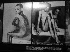 Il dottor Mengele nel Blocco 10 ad Auschwitz conduceva i suoi esperimenti medici. Particolarmente attirato dai gemelli, aspettava l'arrivo dei treni per selezionare quelli che  gli interessavano (da documentazioni si parla 3000 gemelli in 2 anni).