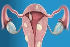Fibroids during pregnancy ovarian cyst,ovarian fibroids symptoms uterine fibroids and bleeding,uterine fibroids leiomyomas where can you get fibroids. Uterine Fibroids Symptoms, Fibroid Cyst, Fibroid Uterus, Fibroid Surgery, Prolapsed Uterus, Ovarian Tumor, Natural Cures, The Cure, Aloe Vera