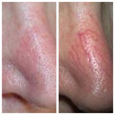 www.spabannockburn.co.uk   Skin Rejuvenation to treat broken veins using IPL at Spa@Bannockburn, a luxury MediSpa owned bylocal dentist, Patricia Manson.