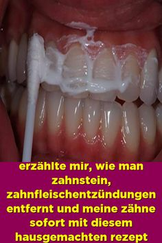 A friendly dentist told me how to remove calculus inflammation and mine - All About Hairstyles Teeth Health, Oral Health, Smile Teeth, Calculus, Cavities, Natural Medicine, Teeth Whitening, Healthy Tips, Natural Health