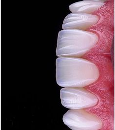 Top Oral Health Advice To Keep Your Teeth Healthy – Best Teeth Whitening Techinque Dental Art, Dental Teeth, Dental Implants, Dental Photos, Dental Images, Veneers Teeth, Dental Veneers, Dental Aesthetics, Dental Photography