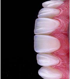Top Oral Health Advice To Keep Your Teeth Healthy – Best Teeth Whitening Techinque Dental Art, Dental Teeth, Dental Implants, Veneers Teeth, Dental Veneers, Dental Wallpaper, Dental Images, Dental Videos, Dental Aesthetics