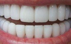 dientes blancos2