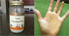Gezondheidsexperts zeggen dat kokosolie goed voor je is, maar DIT is wat ze er niet bij zeggen! | Dagelijks.nu
