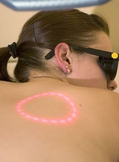The most effective and long term method of hair removal from the back is by laser treatment. Let us take a look at some of the pros and cons of back hair laser removal. Health Guru, Health Class, Health Trends, Womens Health Magazine, Hair And Makeup Tips, Pregnancy Health, Women Pregnancy, Healthy Women, Acne Scars