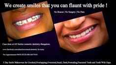 All Smiles Dental Clinic,Bangalore-center for cosmetic dentistry Dental Hygiene, Dental Care, Cosmetic Dentistry Cost, Crooked Teeth, Dental Veneers, Smile Makeover, Dentist In, Good Smile, Beast