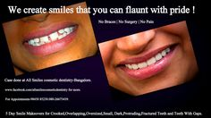 Smile makeover Bangalore before and after photos.Cosmetic dentistry, Smile designing, Smile makeover, Smile Sculpting, Aesthetic Dentistry. It means sculpting a better smile by changing the alignment, shape, color and texture of your existing teeth by modifying  with ceramic/porcelain crowns/veneers.your teeth can be straightened without braces/orthodontic treatment  in just 5-7 days in 2-3 visits.More at https://www.facebook.com/Allsmilescosmeticdentistry/photos_albums
