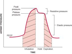 Overview of Mechanical Ventilation: Respiratory Failure and Mechanical Ventilation: Merck Manual Professional Nursing Assessment, Cardiac Nursing, Nursing Tips, Nursing Notes, Flight Paramedic, Merck Manual, Wet Nurse, Mechanical Ventilation, Family Nurse Practitioner