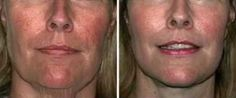 It's more than possible to give yourself a non-surgical facelift yielded by stimulating your face with facial reflexology and face gymnastics. Facial toning exercises lift the face skin with great results for a long-term energy facelift without surgery. Face Skin, Face And Body, Beauty Secrets, Beauty Hacks, Face Care, Skin Care, Anti Aging Creme, Face Treatment, Loose Skin