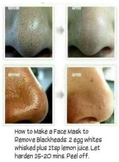 (2) DStyle How to remove Blackheads