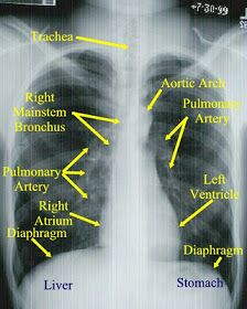 Respiratory Therapy Cave: Tips for reading chest x-rays