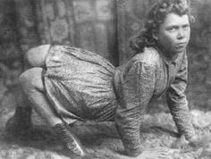 "Ella Harper the ""Camel Girl"" was born with an orthopedic condition that caused her knees to bend backwards, called congenital genu recurvatum. Description from pinterest.com. I searched for this on bing.com/images"