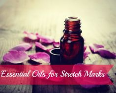 The Best Essential Oils for Stretch Marks