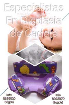Clínica en Bogota especializada en tratamientos contra la Displasia del Desarrollo de las Caderas en niños Unidad Especializada en Ortopedia y Traumatologia en Bogota - Colombia PBX: 6923370 www.unidadortopedia.com