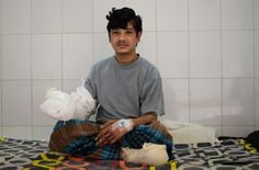 """A Bangladeshi father dubbed the """"tree man"""" because of the bark-like warts that once covered his body will soon be able to leave hospital after groundbreaking treatment for one of the world's rarest diseases.  Abul Bajandar has undergone at least 16 operations to remove five kilos (11 pounds"""