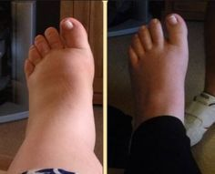 11 photos of pregnancy swelling: How do your feet compare? Compression Socks For Travel, Swollen Ankles, Diabetic Neuropathy, Foot Detox, Foot Pain, Varicose Veins, How To Get Rid, Fashion Models, Pain Relief