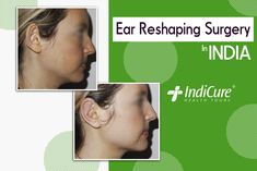 We are pleased to share one of our patients amazing results post her #earreshaping surgery in India. What do you think about the results? Comment below! #beforeandafter #otoplasty #cosmeticsurgery #plasticsurgery #throwback #bhfyp #follow #like India, Amazing, Health, Face, Goa India, Health Care, The Face, Faces, Indie