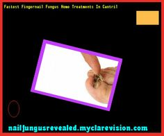 Fastest fingernail fungus home treatments in cantril - Nail Fungus Remedy. You have nothing to lose! Visit Site Now