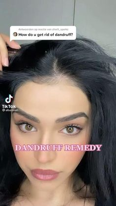 Beauty Tips For Glowing Skin, Health And Beauty Tips, Beauty Skin, Dandruff Remedy, Hair Remedies, Diy Hair Mask For Dandruff, Diy Hair Treatment, Hair Treatments, Healthy Hair Tips