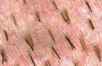 Finden Sie eine perfekte Problembewältigung bei Haarausfall durch eine Eigenhaartransplantation. Bei einer Haarverpflanzung in der Türkei werden Sie von versierten Fachärzten mit modernen Methoden versorgt.