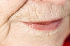 Home Remedies for Wrinkles Round Lips: Eleminate the Signs of Aging with Natural Remedies ~ Home Remedies for Wrinkles: Forehead Wrinkles, Under Eye, Neck Wrinkles, Wrinkles Around Mouth