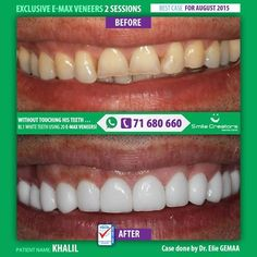 Without touching his Teeth, KHALIL got in 2 visits 24 E-MAX VENEERS and his HOLLYWOOD SMILE!  Congratulations KHALIL !   من دون المس بأسنانه، حصل خليل وفي جلستين فقط على 20 واجهة خزفية وبالنتيجة حصل على ابتسامته الهوليودية.   مبروك خليل !  #SmileCreatorsDentalClinic Boulevard Sin El Fil - Main Road Certified Dental Quality Services #ISO9001: 2008 #smilecreators #WeCreateYourHollywoodSmile